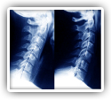 Neck Curvatures Improved with Chiropractic According to Study