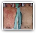 Resolution of Psoriasis with Chiropractic: A Case Report 